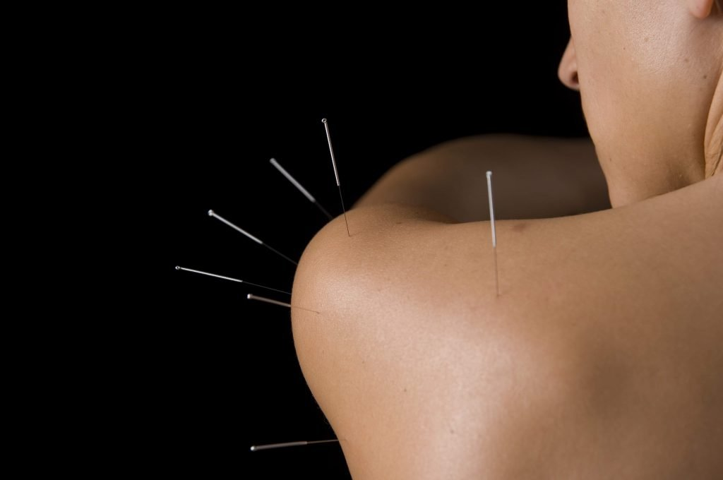 Shoulder Acupuncture Points